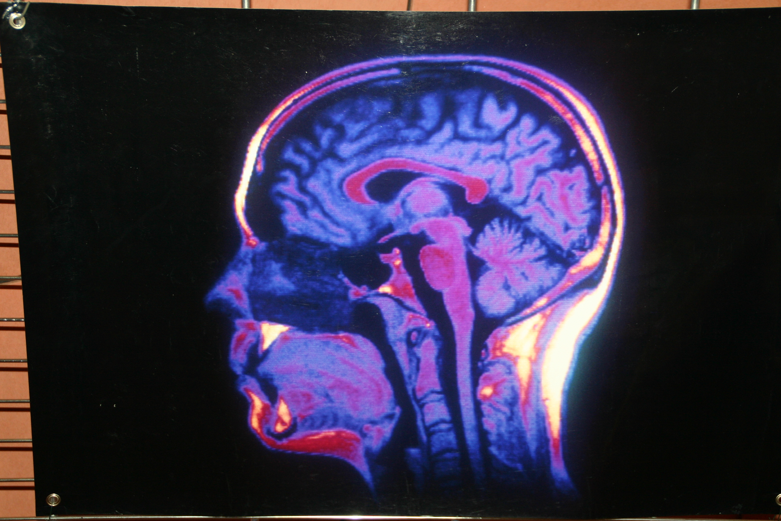 Tous les secrets du cerveau exposés en couleur à la bibliothèque universitaire de Gap