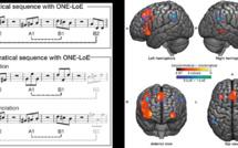 Chronique Caro: La musique et ses effets sur notre cerveau